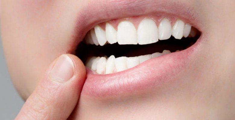 Diş Çürüğü Kalp Hastalığına Yol Açıyor