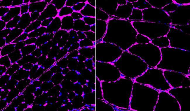 Gen düzenlemesi farelerde hastalıkları tersine çeviriyor