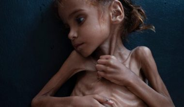 Yemen'de insani krizin sembolü haline gelen kız